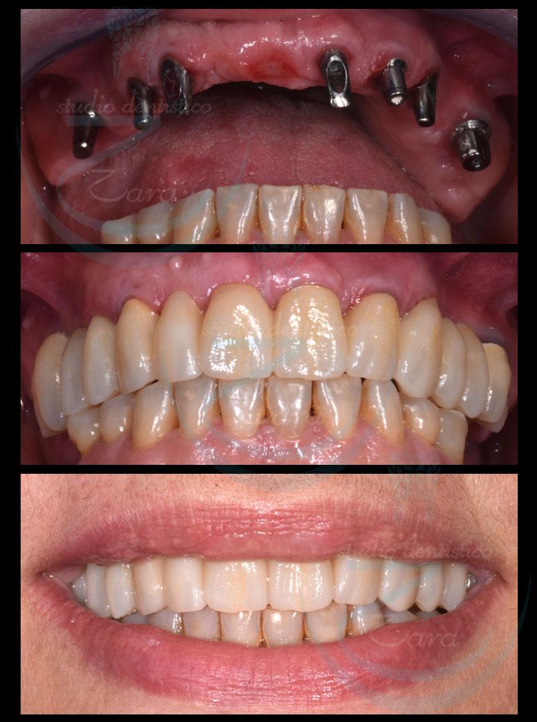 Case study Impianto dentale Zara
