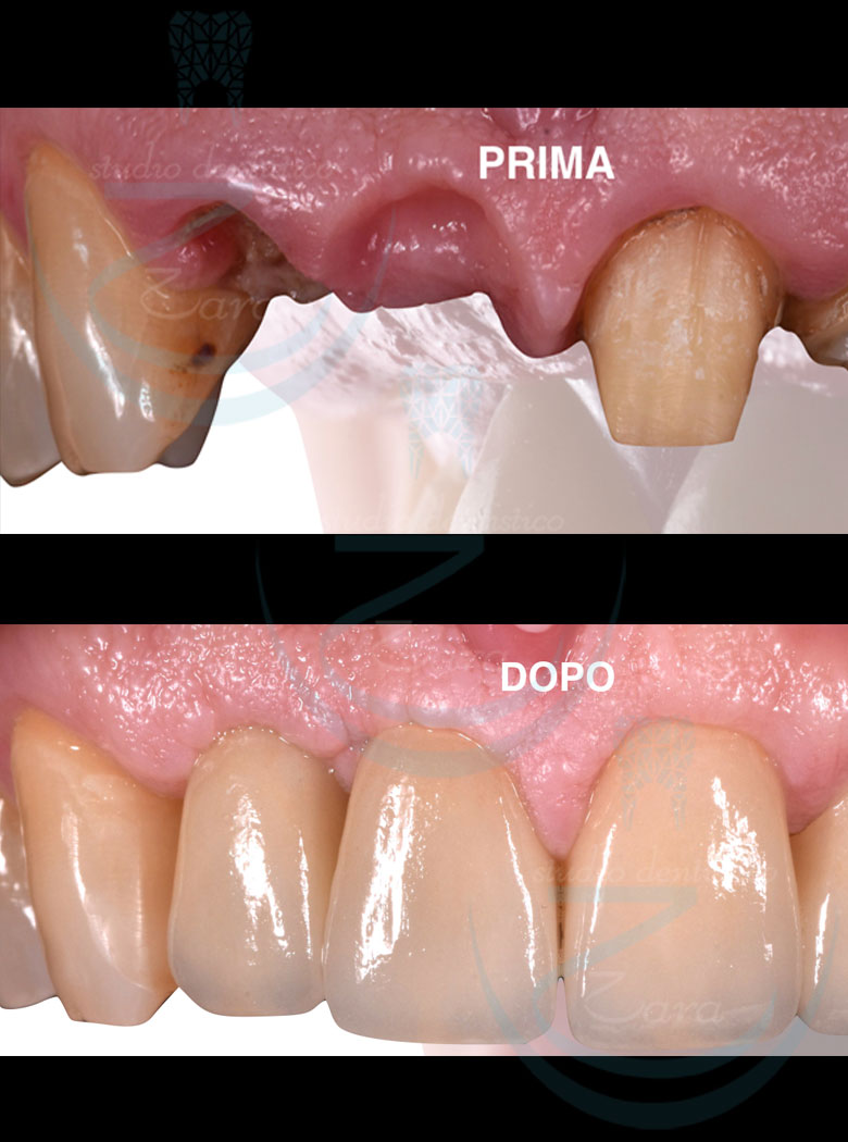 Case study protesi dentaria - Studio Zara
