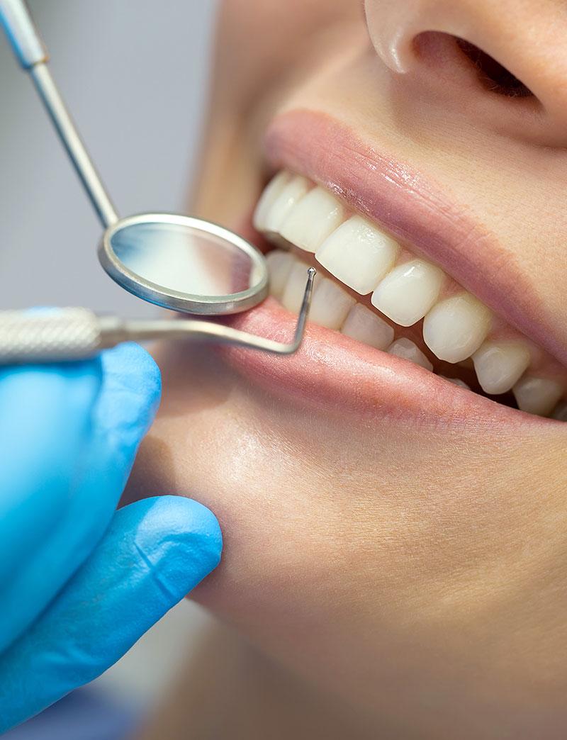 Igiene e profilassi dentale professionale
