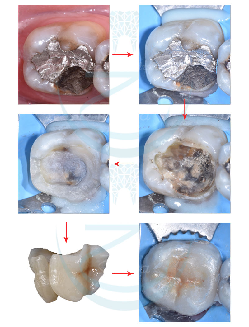 Case study Odontoiatria conservativa Sassari