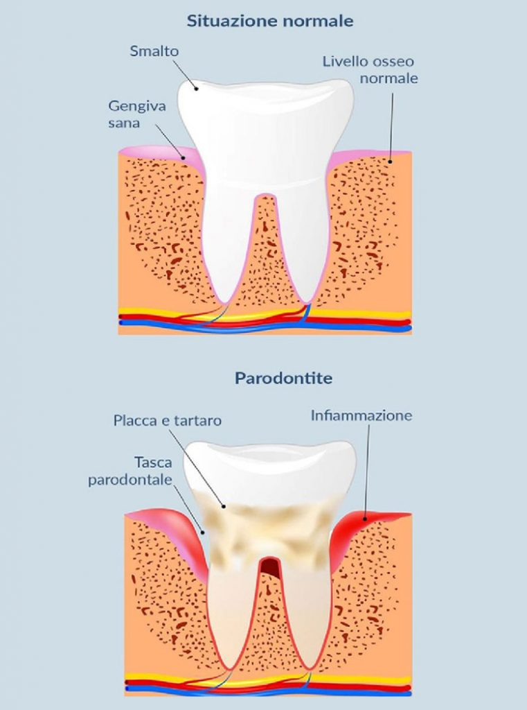 Parodontite e situazione dentale normale