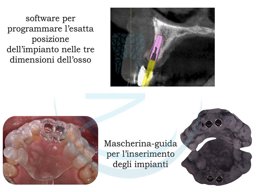 Programmazione impianto dentale