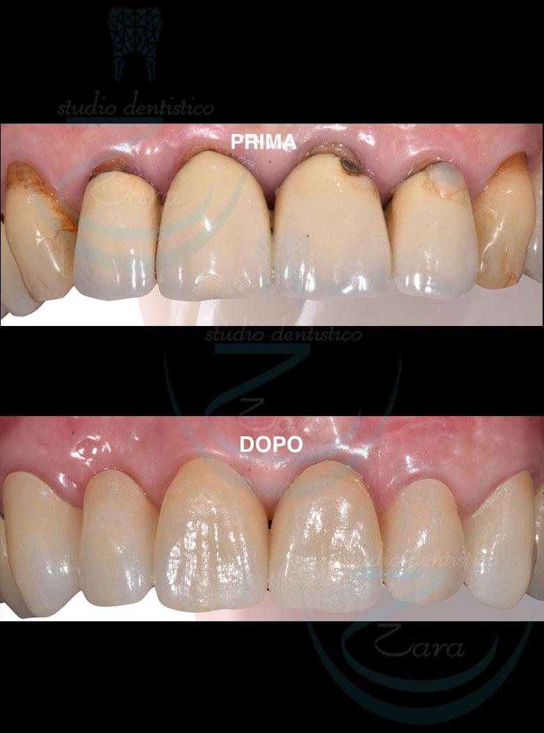 Case study protesi dentale