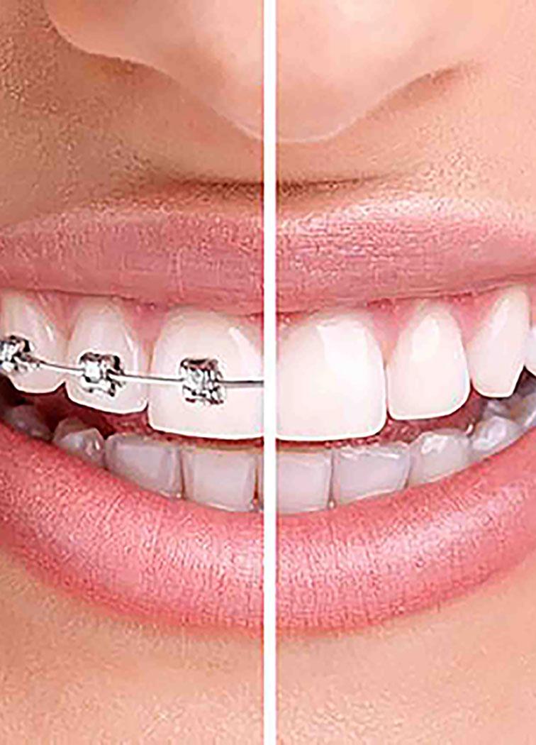 Terapia ortodontica di mantenimento