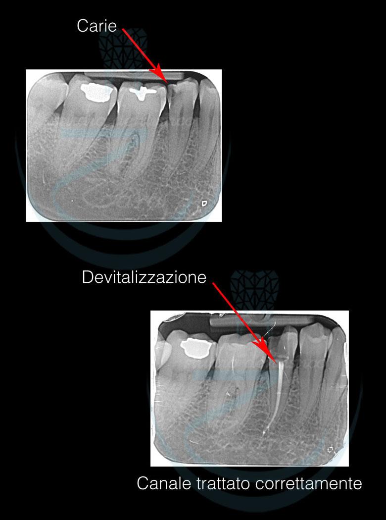 Esempio di devitalizzazione del dente
