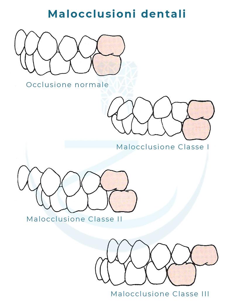Classi di malocclusione dentale
