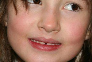 Diastema nei bambini