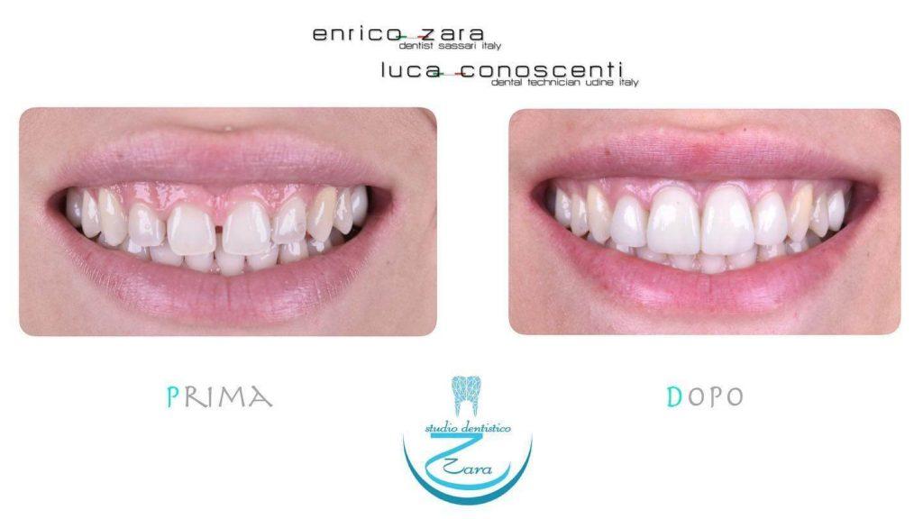 Correzione diastema con le faccette dentali