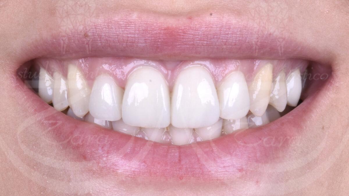 Faccette dentali dopo - Studio Dentistico Zara
