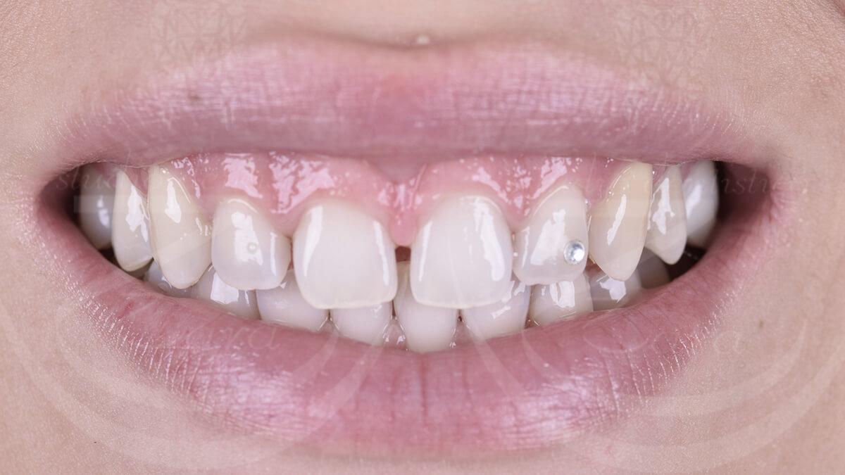 Faccette dentali prima – Studio Dentistico Zara