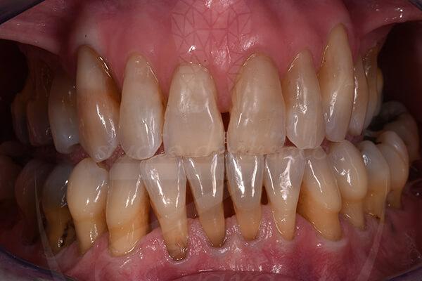 Caso di parodontite - Studio Dentistico Zara