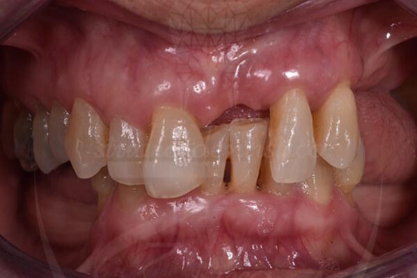Caso di un paziente con parodontite curato presso Studio Dentistico Zara