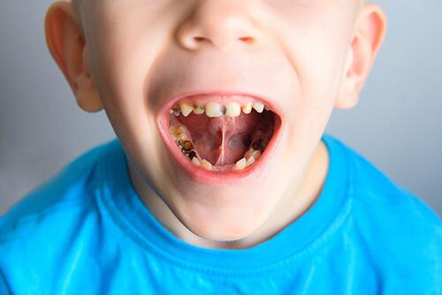 Curare carie denti bambini