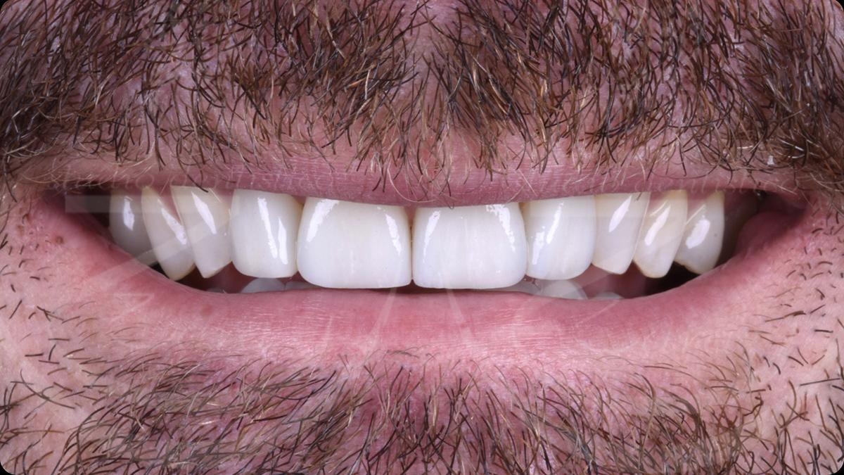 Esempio faccette dentali dopo