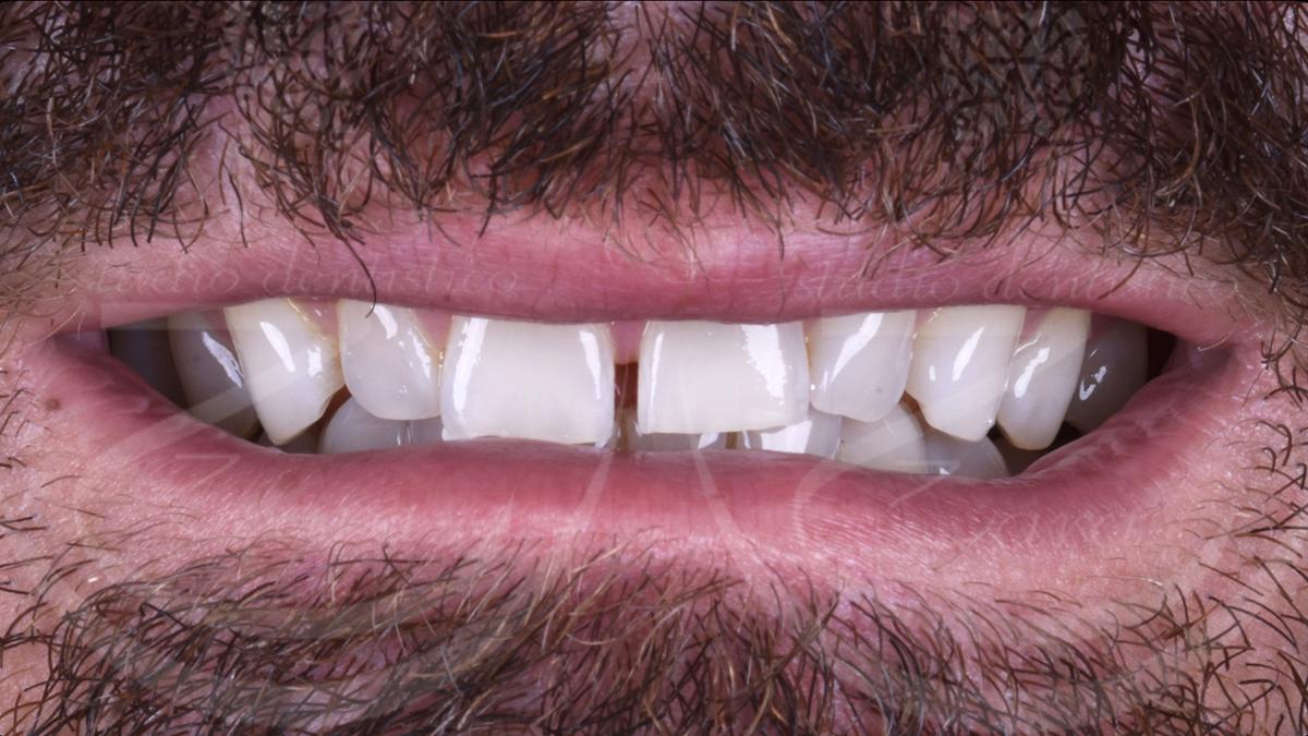 Esempio faccette dentali prima