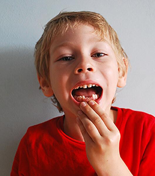 Quando cadono i denti ai bambini