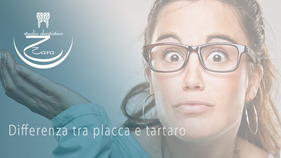 Differenza tra placca e tartaro