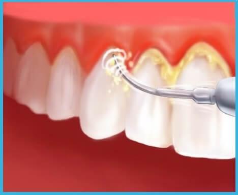 Rimuovere il tartaro dal dentista