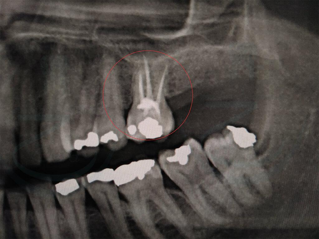 Radiografia dente devitalizzato - Canali radicolari con guttaperca