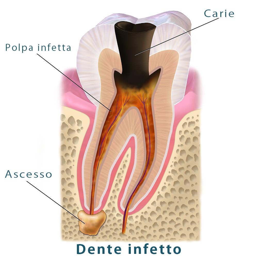 Dente cariato infetto