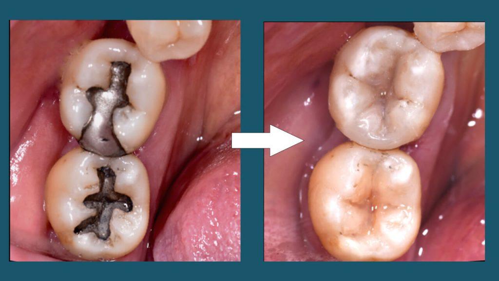 Otturazione e ricostruzione dente