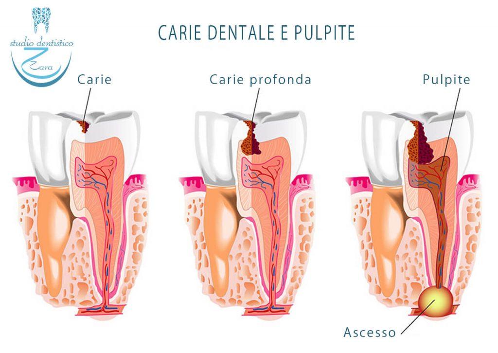 Pulpite in seguito a Carie dentale