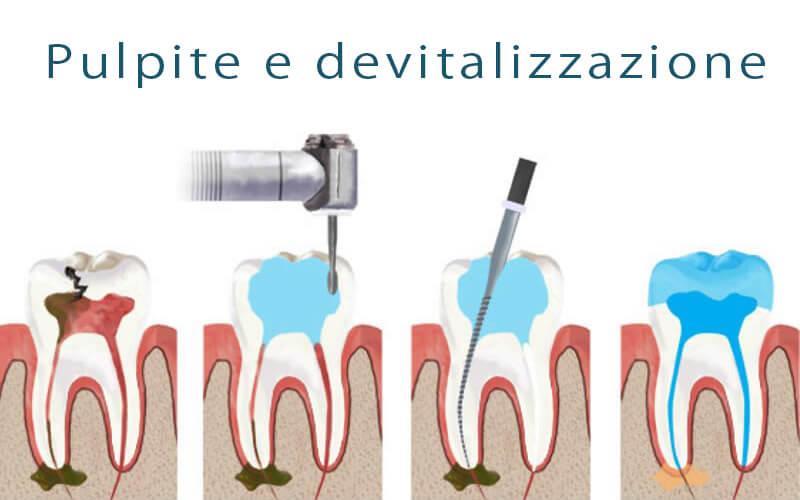 Pulpite e devitalizzazione