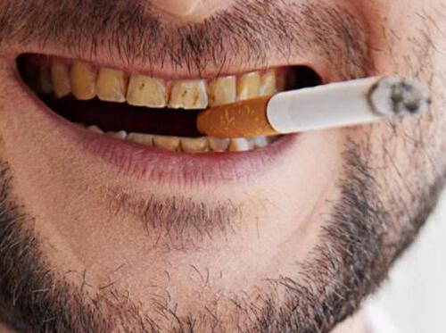 Denti macchiati dal fumo di sigaretta