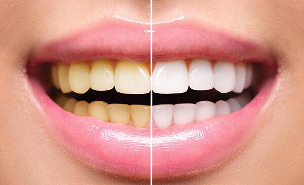 Denti gialli e macchie sui denti