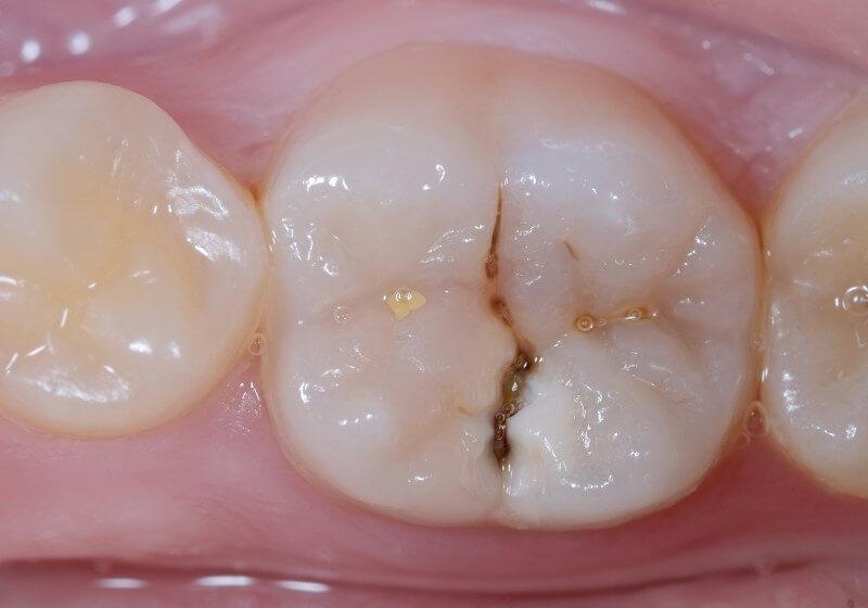 Carie dentale dei molari nei bambini