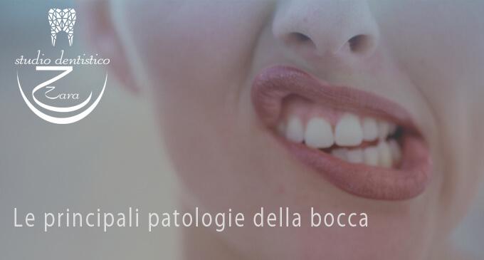 Le principali patologie della bocca