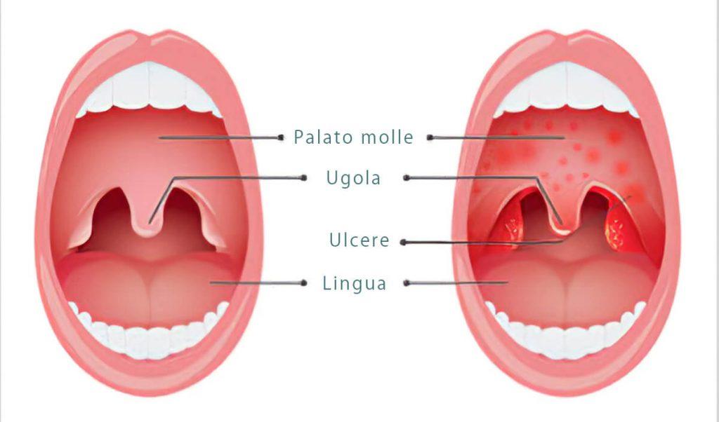 Rappresentazione herpangina