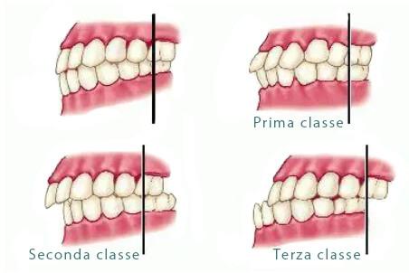 Classi o gradi di malocclusione dentale