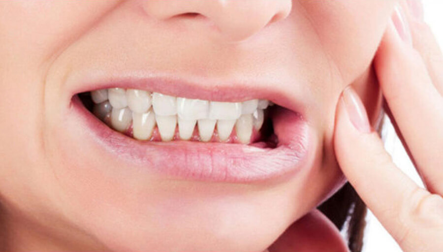 bruxismo e mal di denti